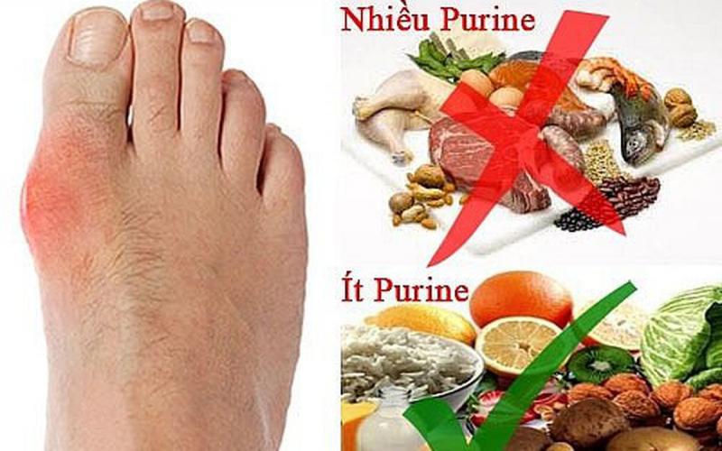 Hạn chế tiêu thụ thực phẩm nhiều purine
