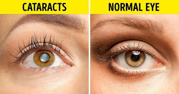 Hút thuốc cũng liên lụy tác động không tốt đến thị lực