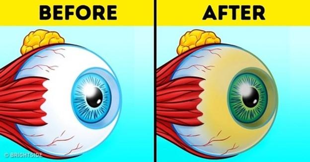 Không phải tất cả những thay đổi về mắt đều là kết quả của sự vô trách nhiệm