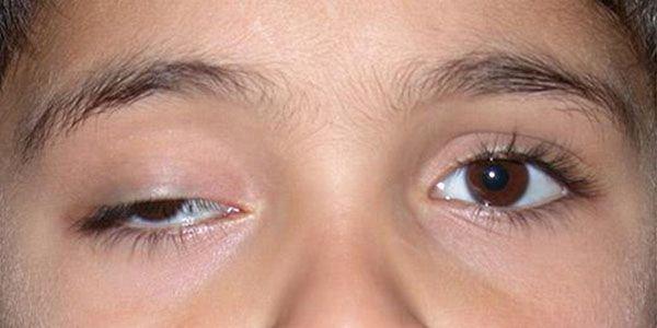 Mí mắt bị hở