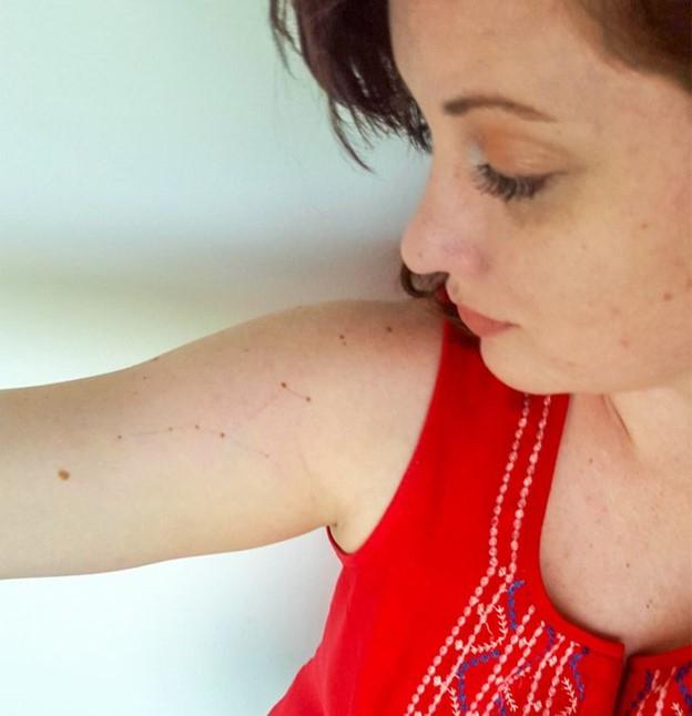 Nốt ruồi trên cánh tay phải của bạn