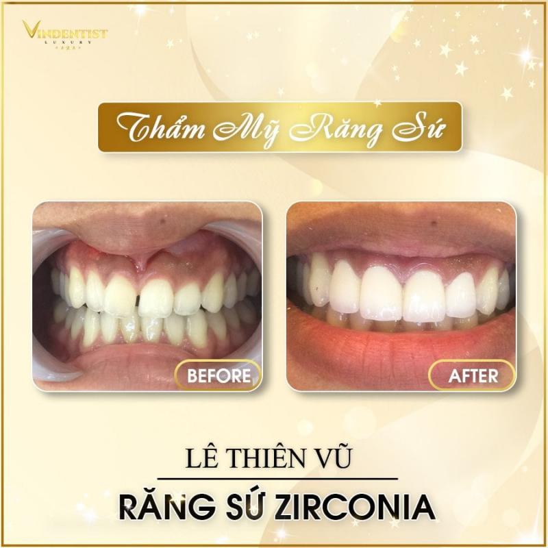 VIN Dentist – Nha khoa Đà Nẵng